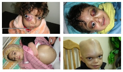 News about                                   criminal radioactive NATO: in Iraq are                                   living thousands of deformed children                                   by radioactive NATO uranium                                   ammunition